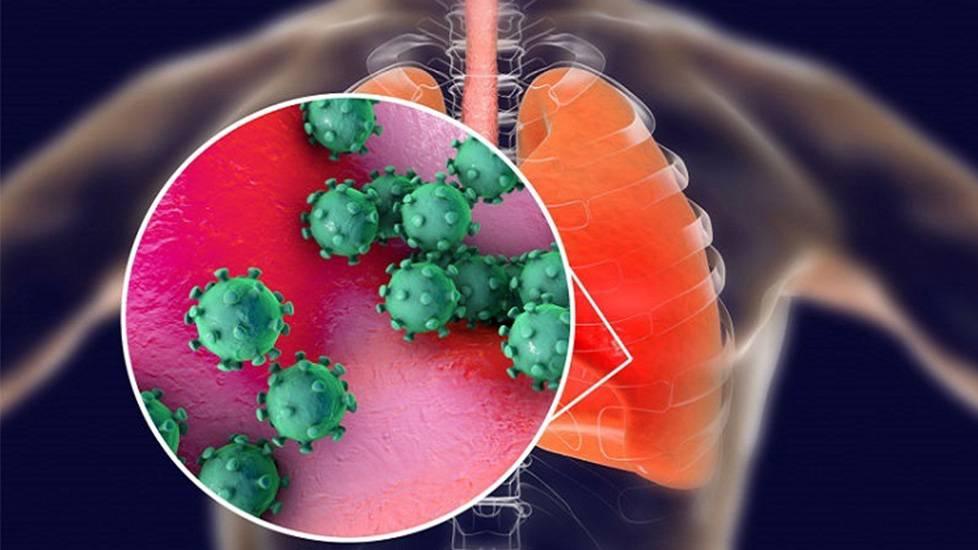 Nguồn phát tán bệnh nCoV thực chất là từ đâu?