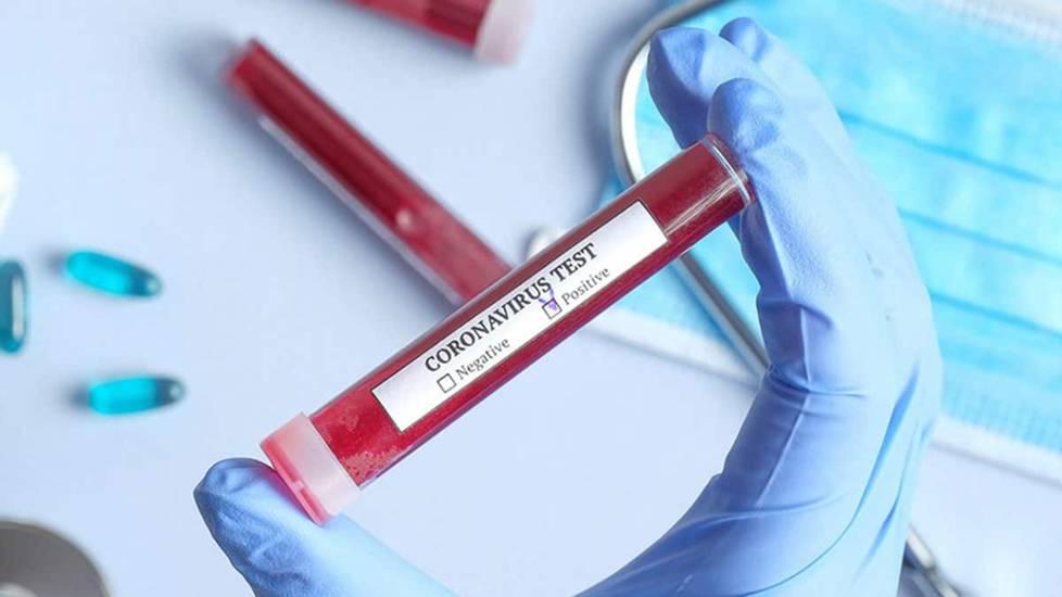 Cần làm gì sau khi tiếp xúc với người nhiễm, nghi nhiễm Covid-19?