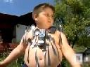 Cậu bé hóa ''người từ trường'' sau hôn mê do điện giật