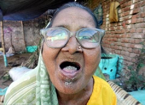 Mỗi ngày ăn 1kg cát sỏi, cụ bà vẫn sống nhăn!