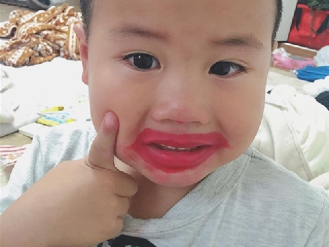 Không ngậm được mồm với chú bé bị loét môi