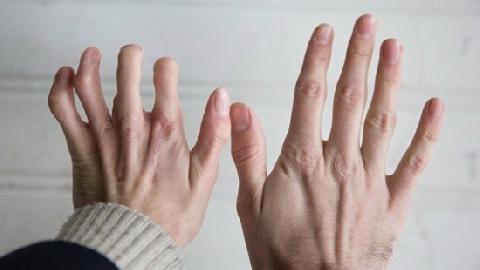Bác sỹ biến ngón chân thành ngón tay