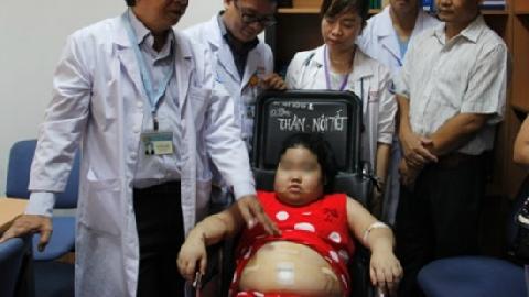 Mắc bệnh lạ, bé gái tăng cân liên tục