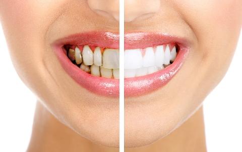 Tự làm miếng tẩy trắng răng tại nhà an toàn, tiết kiệm