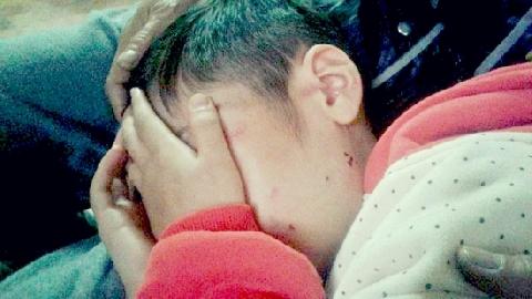 Hà Nội: bé trai 10 tuổi bị bạo hành bởi bố đẻ, mẹ kế!