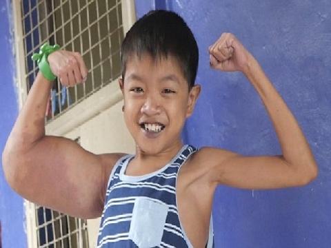 Cậu bé 11 tuổi có nickname 'thủy thủ Popeye' bởi bắp tay kỳ lạ!