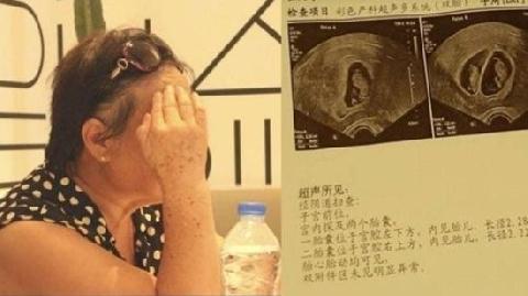 Cụ bà Trung Quốc mang thai đôi ở tuổi 67