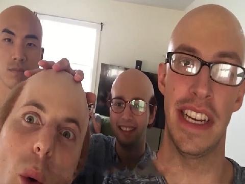 Nếu có một ngày bạn hói đầu... !??