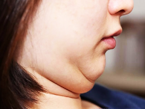 Muốn giảm béo mặt hiệu quả hãy xem video dưới đây