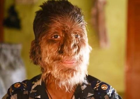 Cậu bé 'người sói' mắc bệnh hiếm khiến lông lá mọc khắp mặt