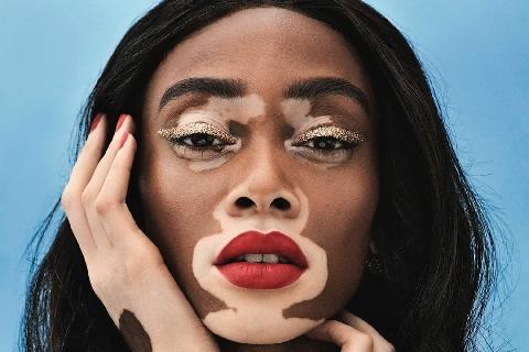 Sự quyến rũ của người mẫu ''loang lổ'' Winnie Harlow