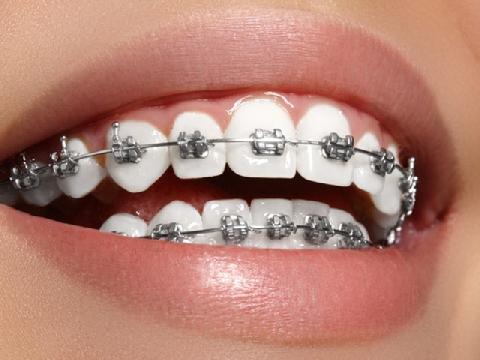 Nếu bạn hỏi: ''niềng răng có đau không'' thì đây là toàn bộ câu trả lời!