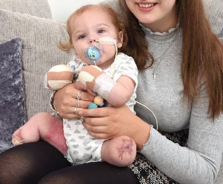 Bé trai 11 tháng tuổi rụng hết tay, chân sau 2 ngày viêm họng