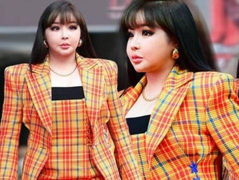 Sốc với gương mặt biến dạng không nhận ra của Park Bom