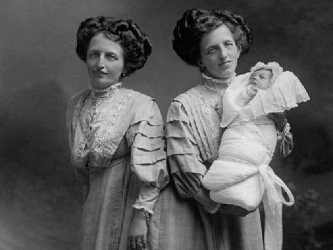 Chị em song sinh dính liền đầu tiên trong lịch sử sinh con