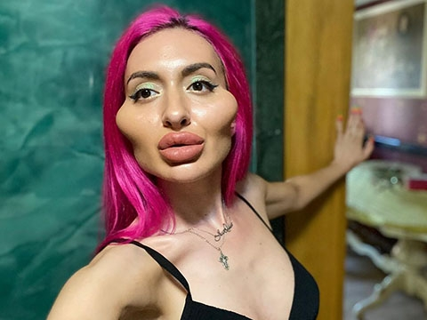 Người phụ nữ có gò má cao nhất thế giới
